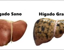 imagen Hígado graso: Combátelo con estos increíbles remedios naturales