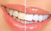 imagen Productos naturales que te ayudarán a blanquear los dientes
