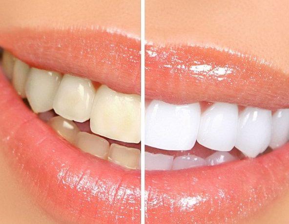 imagen Remedios para blanquear los dientes