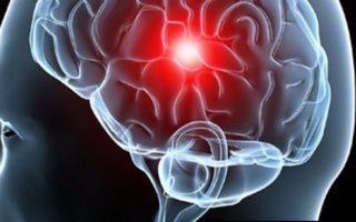 imagen Cómo prevenir un accidente cerebrovascular: 5 Consejos