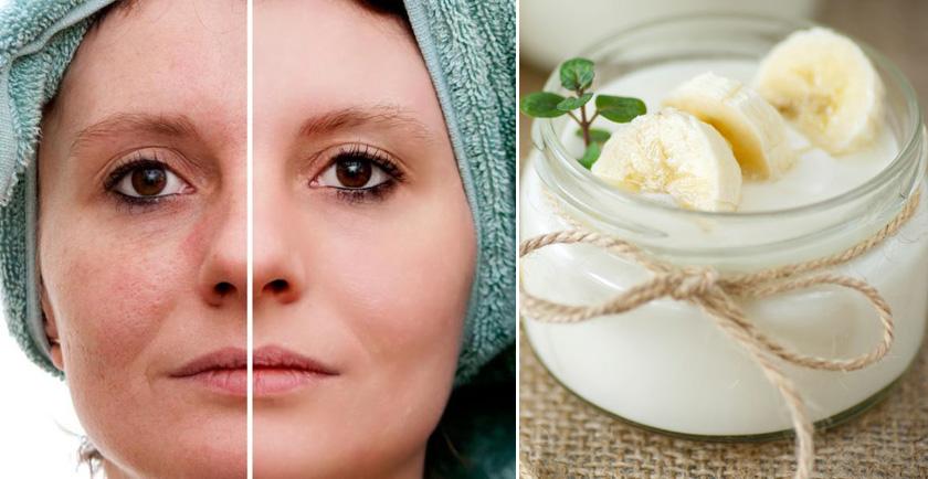 imagen Melasma o paño en la cara, remedios caseros