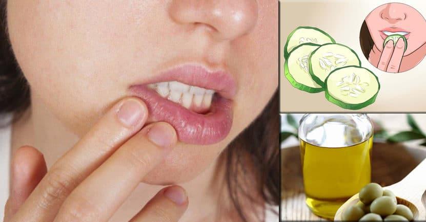 imagen Repara tus labios agrietados con estos remedios caseros