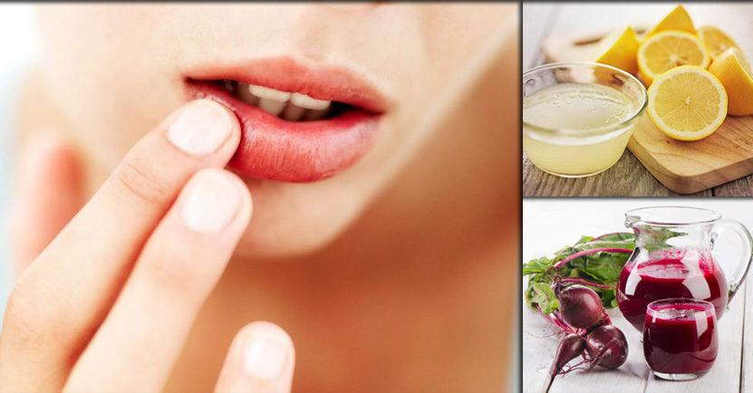 imagen Acaba con las manchas oscuras en los labios con estos remedios caseros