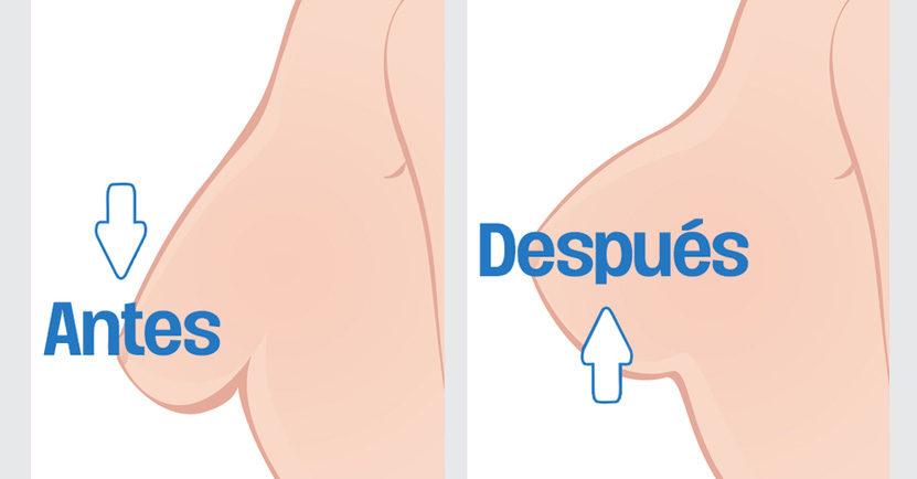 imagen Remedios caseros para los senos caídos