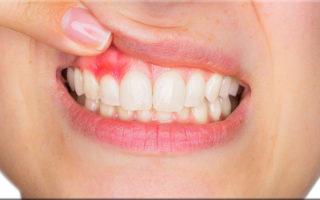 imagen Remedios caseros para las encías inflamadas