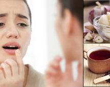 imagen Remedios naturales para curar el herpes labial